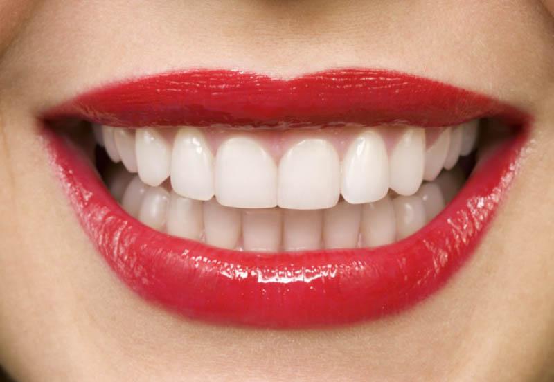 Создаём красивую улыбку!