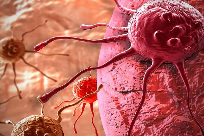 В Прикамье применяют инновации против рака